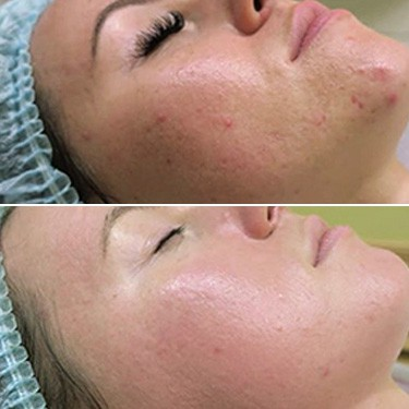 GREEN PEEL STOP ACNE фото